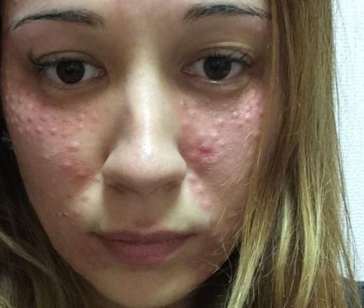 аллергия после увеличения губ