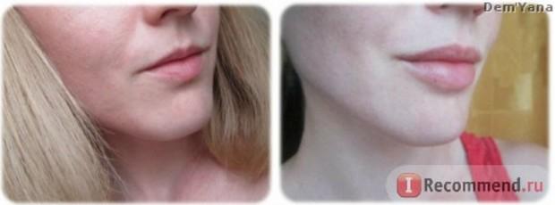 Губы до и после гиалуроновой кислоты фото спустя год