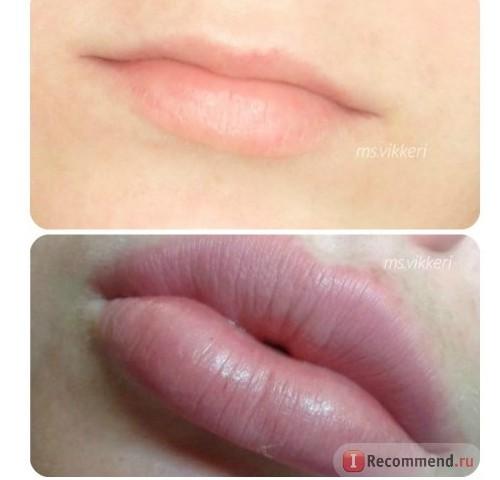 Фото губ до и после