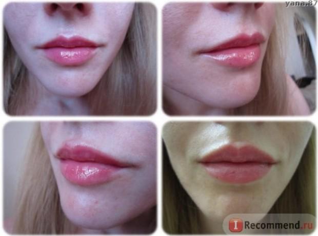 Фото губ после двух недель накрашенные блеском